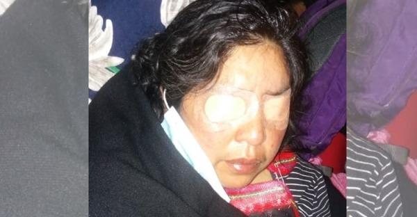 Nación Mapuche. Madre de Camilo Catrillanca resultó con ceguera temporal por gas pimienta