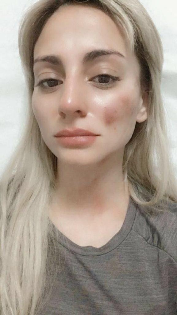 Cuando el agresor es un carabinero: Mujer denuncia a su ex pareja tras golpiza que la dejó inconsciente y acusa defensa corporativa de la institución