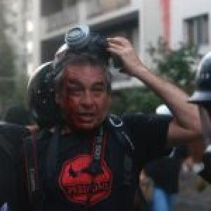 Chile. Los «pacos» tiraron a matar contra los comunicadores populares: dos heridos y varios gaseados adrede