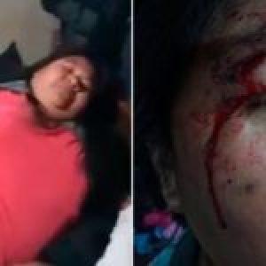 Argentina. La REDH contra el racismo y la violencia institucional policial