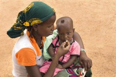 África. Más de diez millones de niños en el continente sufrirán desnutrición aguda en 2021