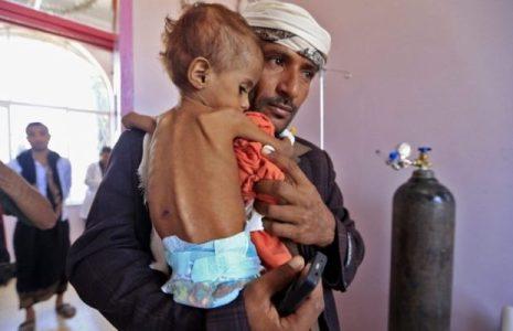 Yemen. Naciones Unidas ignora  el gran sufrimiento humano del pueblo yemenita.