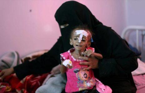 Yemen. Pide a ONU atender catástrofe que vive por agresión saudí