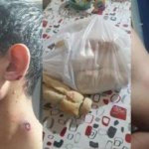 Argentina. La Pampa: salió a comprar el pan y la policía le disparó con balas de goma