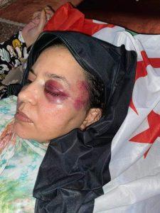 Sáhara Occidental: La policía marroquí agrede repetidamente a la familia de la combatiente Sultana Jaya