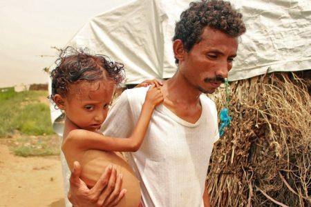 Una hambruna yemení fabricada en Washington y Riad