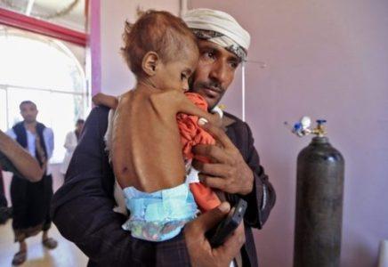 Yemen: Enviado especial de la ONU ignora en su visita el sufrimiento del pueblo (vídeo)